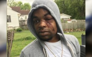 Black Man in Iowa Attacked by White Men, Face Broken…