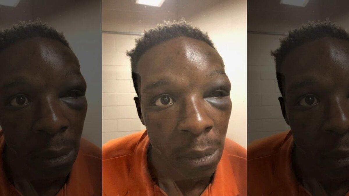 Photograph of Roderick Walker's injuries will being held in custody. (Image via Fox 5 Atlanta)